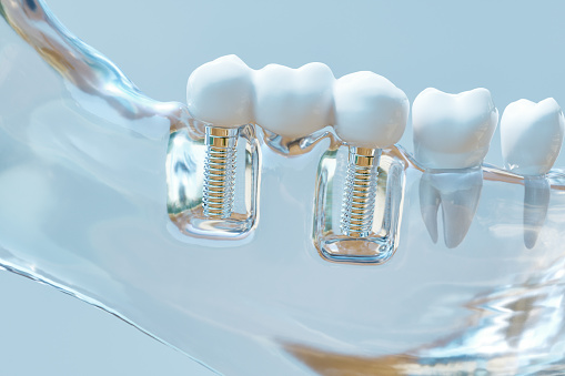 Model of dental implant in jaw