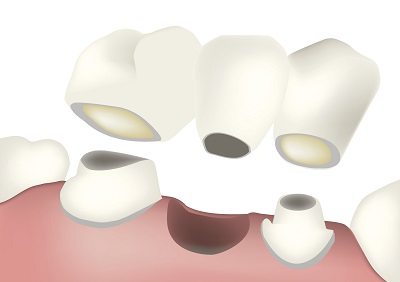 Do You Need to Clean a Dental Bridge Differently Than Your Teeth?