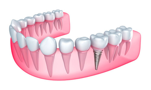 Can Dental Implants Improve Your Oral Health?